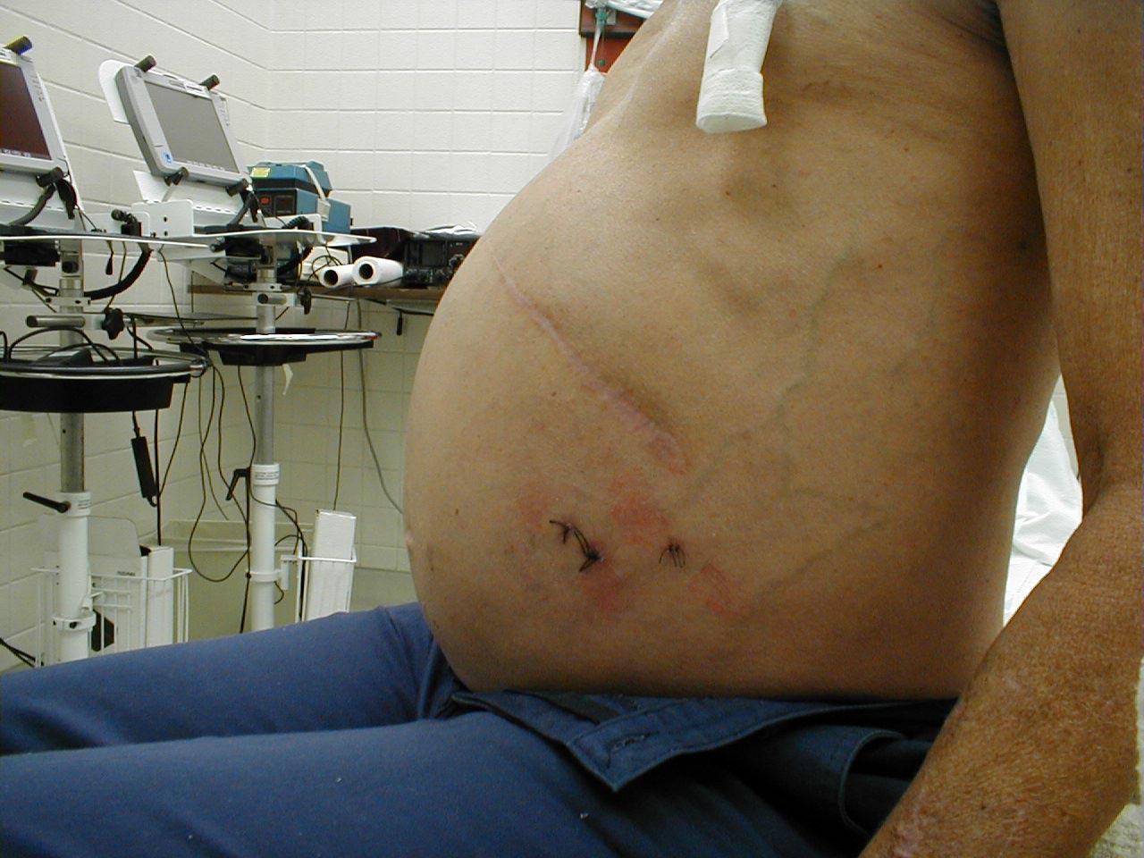 Асцит брюшной полости: лечение, причины, симптомы, асцит при онкологии