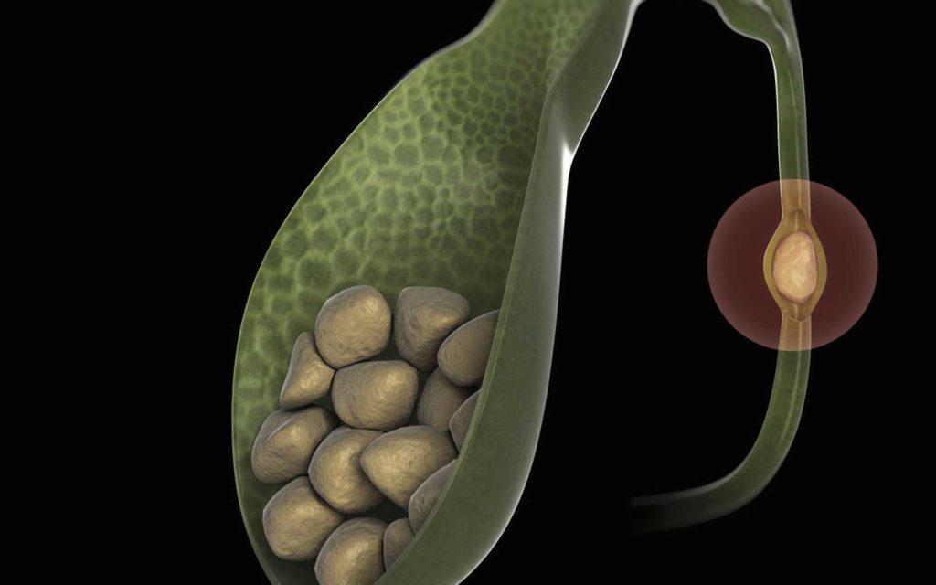 Вздутие живота, отрыжка тухлыми яйцами, понос – причины какого заболевания?